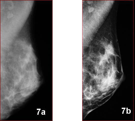 Mamografia: Digital x Analógica, o que fazer?